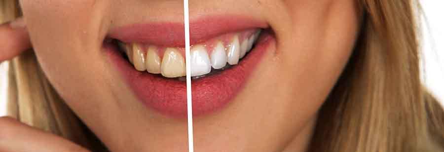 Avant et aprés un blanchiment dentaire.
