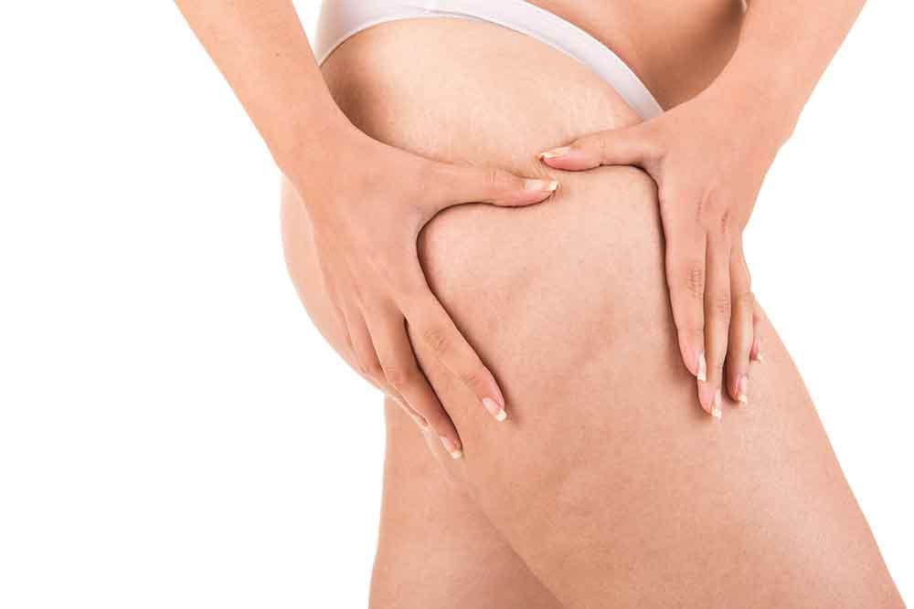 Femme ayant de la cellulite sur ses jambes.