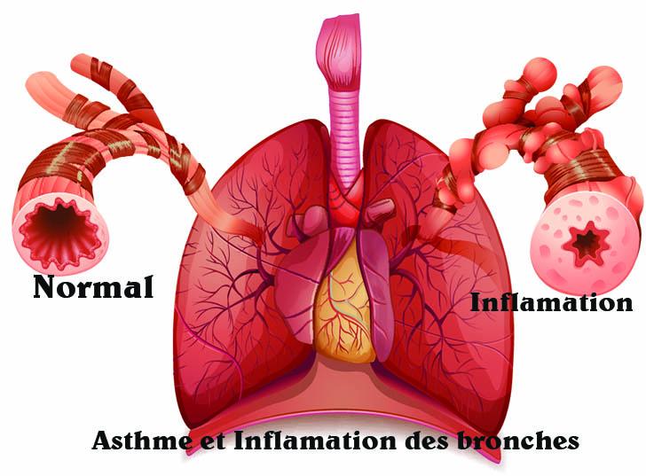 Bronches enflamées par de l'asthme